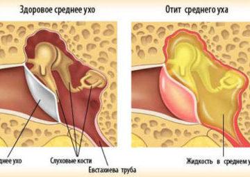 Характерные признаки и симптомы отита у грудничка
