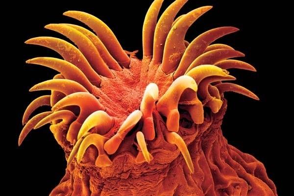 Головка огуречного цепня оснащена крючьями, которыми он прикрепляется к стенкам кишечника