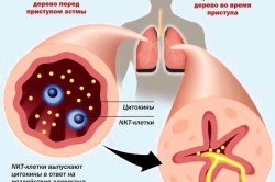 Астма как осложнение после обструктивного бронхита у детей