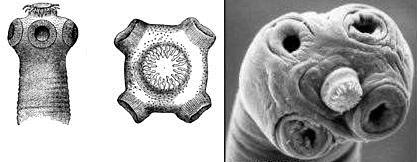 Головка гельминтов типа Цестод:  справа - карликовый цепень, слева - свиной цепень