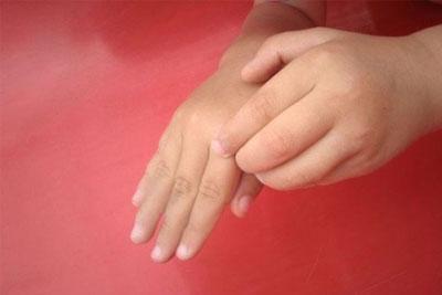 Ребенок чешет руки