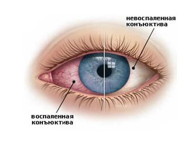 Поражение глаза вирусом