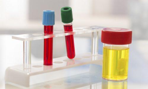 Для постановки диагноза врач назначает лабораторные исследования крови мочи