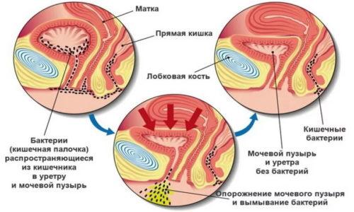 Постоянное проникновение представителей кишечной и влагалищной микрофлоры в мочевой пузырь ведет к длительному проявлению симптомов цистита