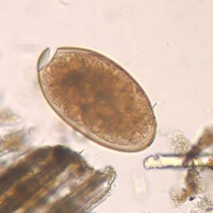 Яйцо Фасциолы Гепатики под микроскопом