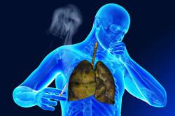 Провоцирование бронхита курением