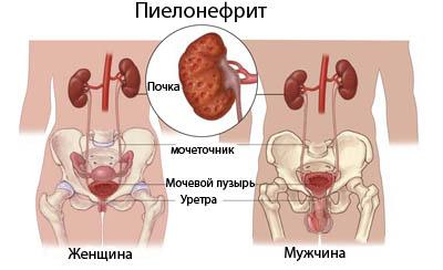 пиелонефрит мужчина и женщина