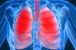 Пневмония бронхов как осложнекние после хронического бронхита