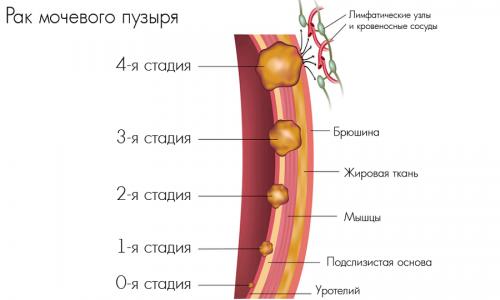 Чаще всего онкология развивается на фоне хронических заболеваний мочевыводящей системы