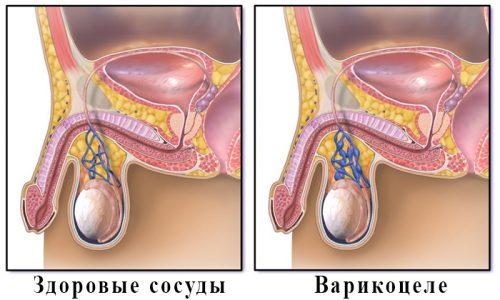 У мальчиков дошкольного возраста и подростков наиболее часто фиксируют варикоцеле