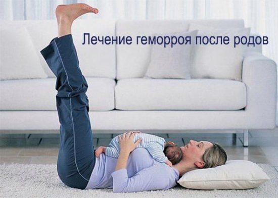 Лечение геморроя после родов
