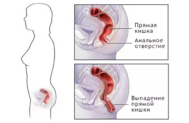 Отмечают, что нетрадиционный секс часто становится причиной травм прямой кишки