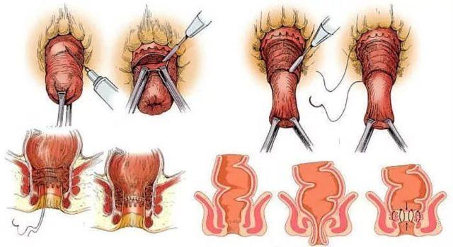 В проктологии существует более 50 разнообразных видов и модификаций операций, выполняемых при ректальном пролапсе