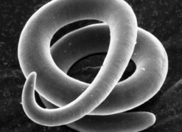 Жизненный цикл личинок трихинеллы