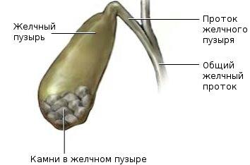 Желчнокаменная болезнь у женщин