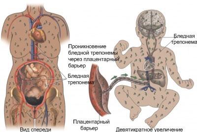 Поражение сифилисом плода
