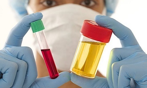 Для правильной диагностики цистита мужчина должен сдать назначенные врачом анализы