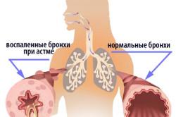 Здоровые бронхи и астматическим бронхитом