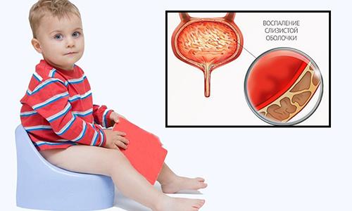 Цистит у детей бывает первичным (не приводит к структурно-функциональным изменениям) и вторичным (возникает при других болезнях вследствие распространения инфекции)