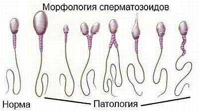 Сперматозоиды с аномальным строением