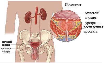 Симптоматика простатита