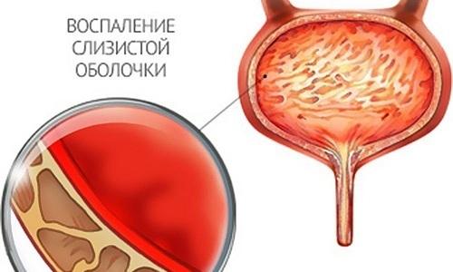 Хронический цистит - воспаление слизистых оболочек мочевого пузыря, вызванное патогенными микроорганизмами