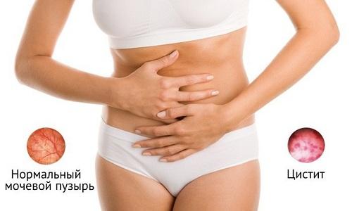 Женщины чаще заболевают циститом, чем мужчины