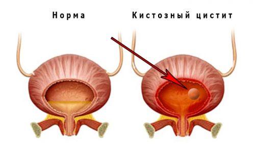 Хронический цистит без поддерживающей терапии вызывает формирование множественных кистозных новообразований