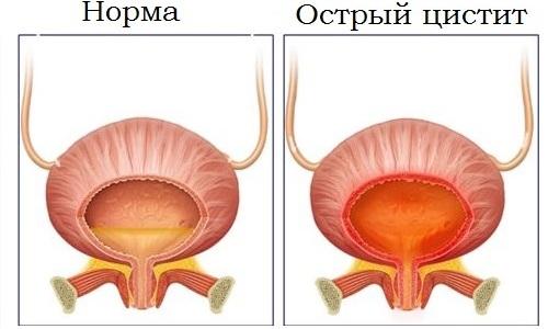 Острый цистит делится на виды в зависимости от инфекционного возбудителя: специфический и неспецифический