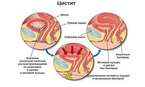 При неосложненном течении цистита воспалительный процесс развивается только в мочевом пузыре и не затрагивает репродуктивные органы, поэтому большинстве случаев при цистите можно забеременеть без проблем
