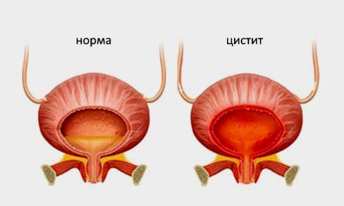 Цистит - это заболевание, которым могут заболеть как мужчины, так и женщины