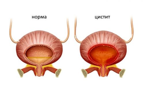Гормональный вид цистита по симптомам мало отличается от других типов воспаления мочевого пузыря
