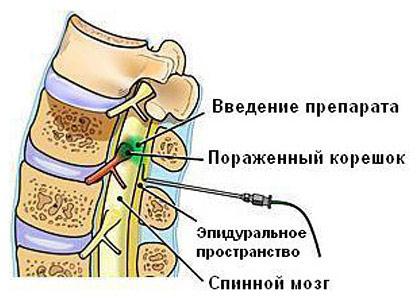 Эпидуральное введение препарата