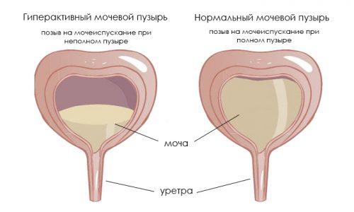 Гиперактивный мочевой - заболевание, возникающее на фоне поражения нервных окончаний, отвечающих за функционирование органа