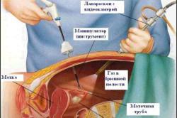 Схема проведения холецистэктомии