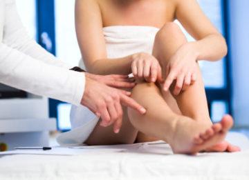 Лечение варикозного расширения вен на ногах в домашних условиях яблочным уксусом