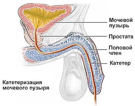 введенный катетер в мужской половой орган