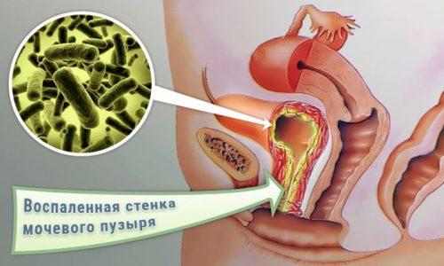 Бактериурия у мужчин часто протекает бессимптомно, обострения возникают при выраженном снижении иммунитета, острый процесс вызывает такие же симптомы, как цистит