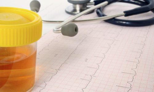Необходимо учесть, что сухие прогревания не рекомендуются при наличии крови в моче