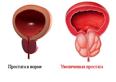 простата в норме и с патологией