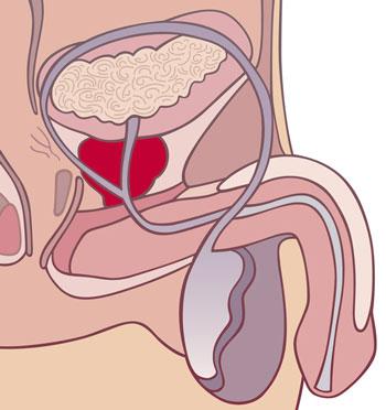 Простатит сперма прозрачная трансфер фактор и простатит