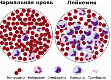 Симптомы и лечение хронического лейкоза