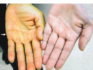 желтуха вторичный симптом камней боли в правом боку первичный признак камней в желчном пузыре