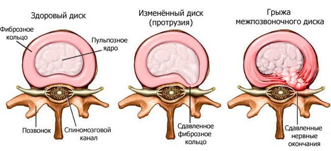 Поврежденный межпозвоночный диск