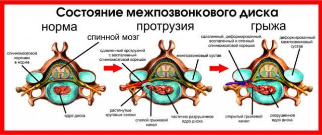 Заболевание межпозвоночного диска