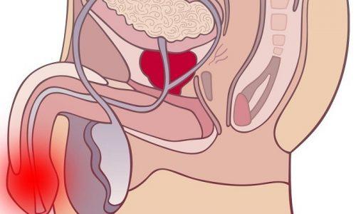 У мужчин уретра длинная и узкая, что мешает инфекции проникнуть в мочевыделительную систему