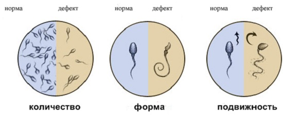плохие сперматозоиды