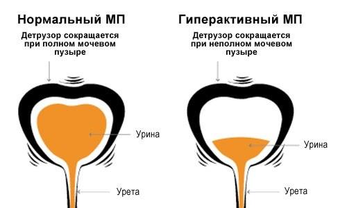 Частое безболезненное мочеиспускание - главный признак ослабления сфинктера пузыря