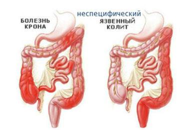 Причины развития и лечение неспецифического язвенного колита