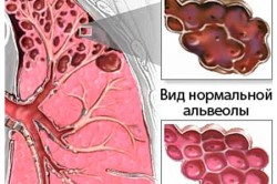 Эмфизема легких как осложнение после обструктивного бронхита у детей